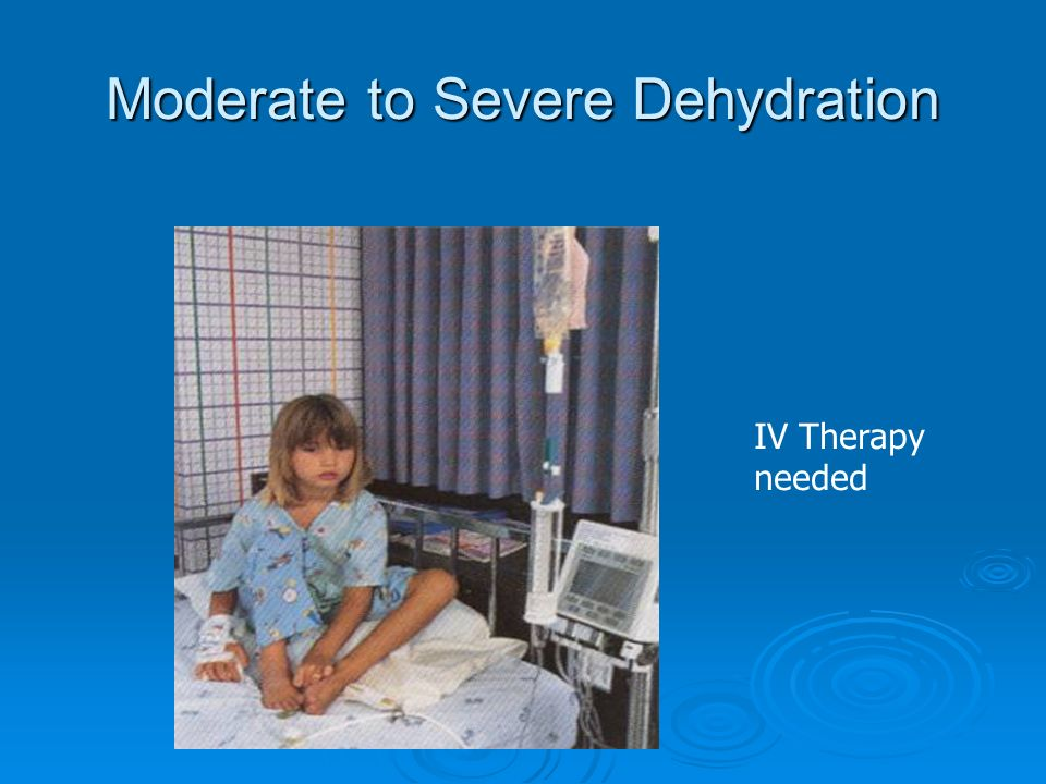 Moderate to Severe Dehydration