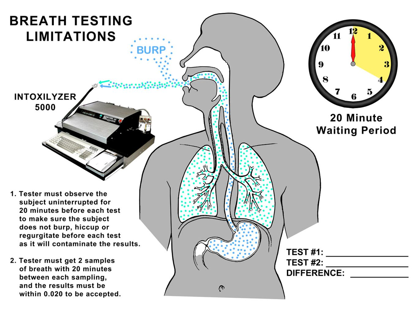 Just basic anatomy shows us why alcohol potentially coming up from the stomach poses such a problem in breath testing.