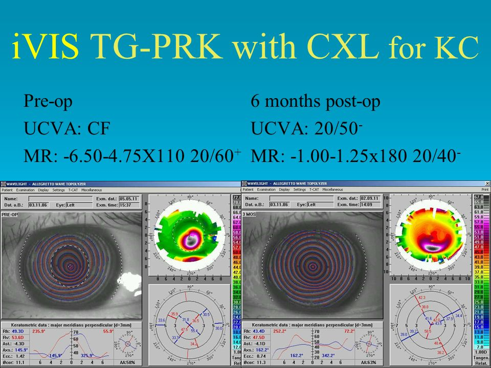 iVIS TG-PRK with CXL for KC