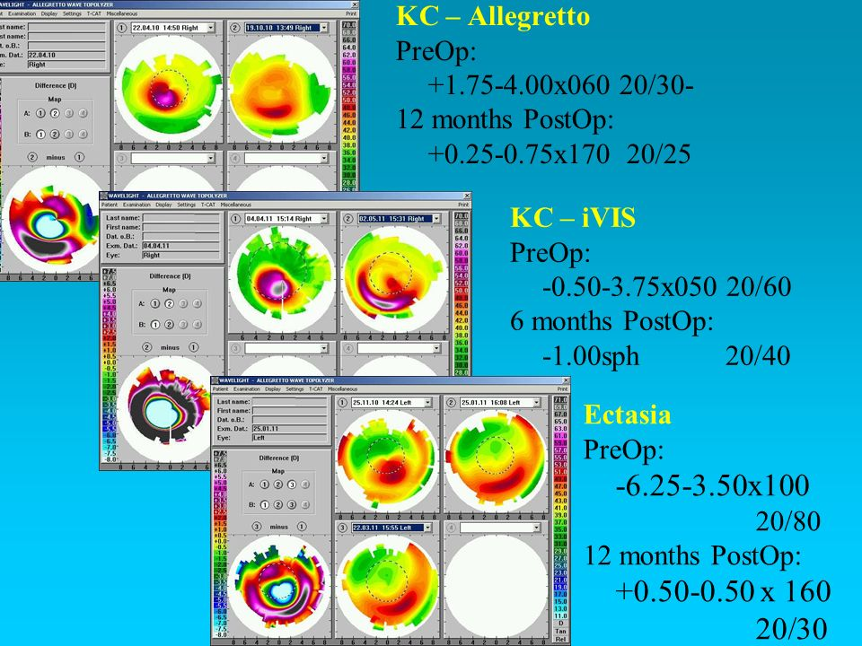 -6.25-3.50x100 +0.50-0.50 x 160 20/30 KC – Allegretto PreOp: