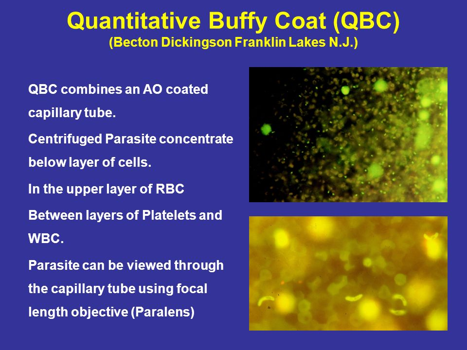 Quantitative Buffy Coat (QBC) (Becton Dickingson Franklin Lakes N.J.)