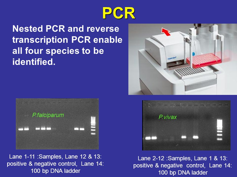 PCR Nested PCR and reverse transcription PCR enable all four species to be identified. P.falciparum.