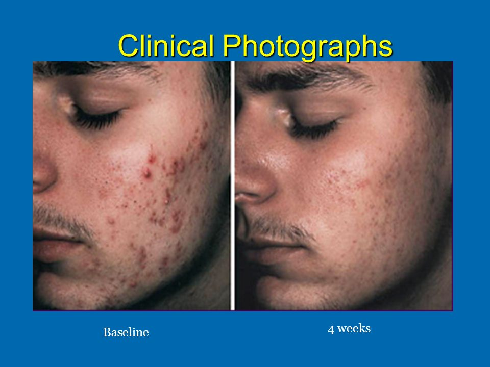 Clinical Photographs 4 weeks Baseline