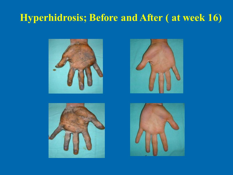 Hyperhidrosis; Before and After ( at week 16)