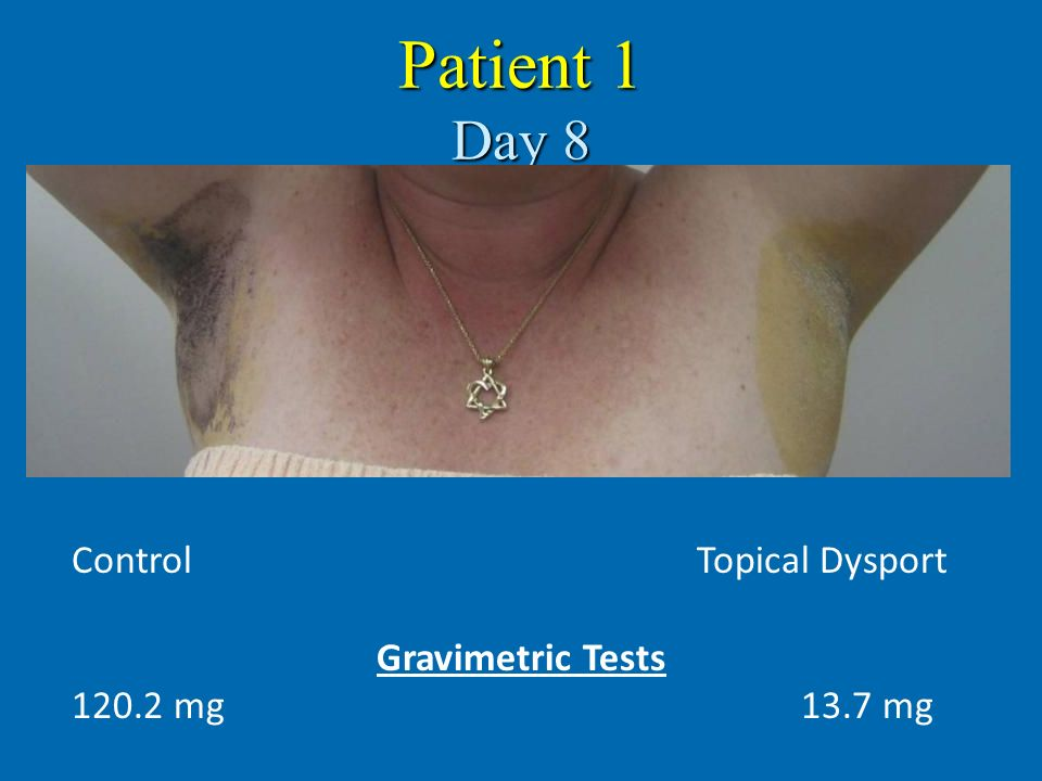 Patient 1 Day 8 Control Topical Dysport Gravimetric Tests
