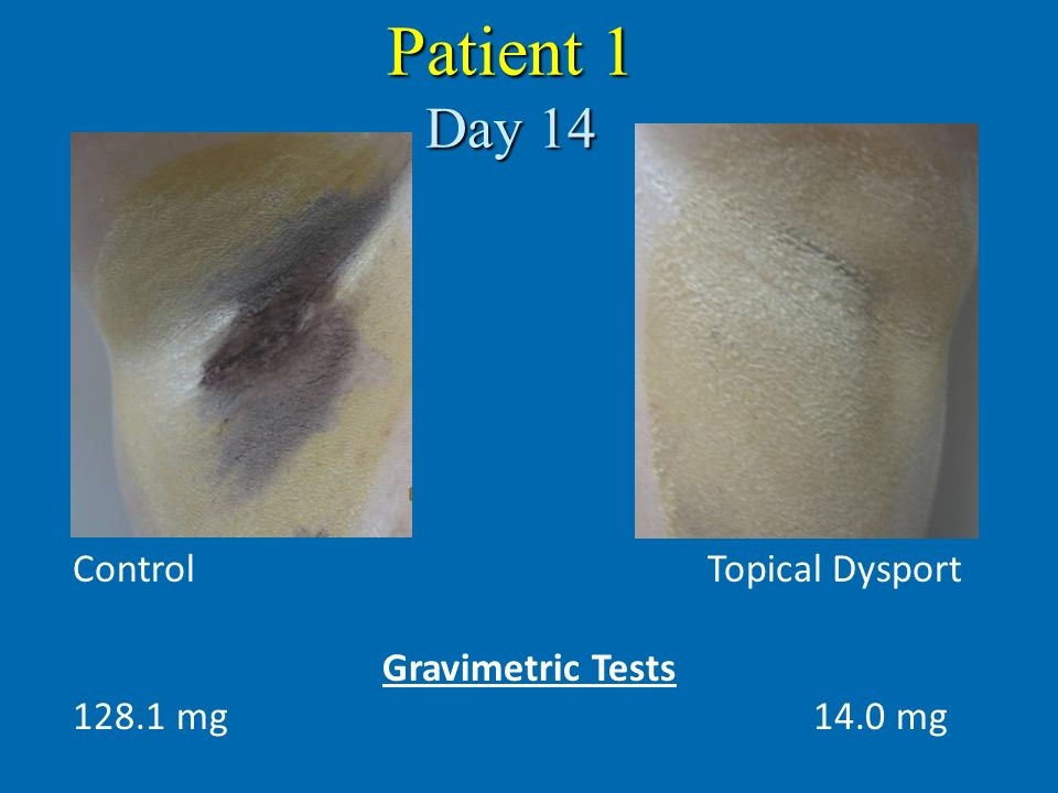 Patient 1 Day 14 Control Topical Dysport Gravimetric Tests