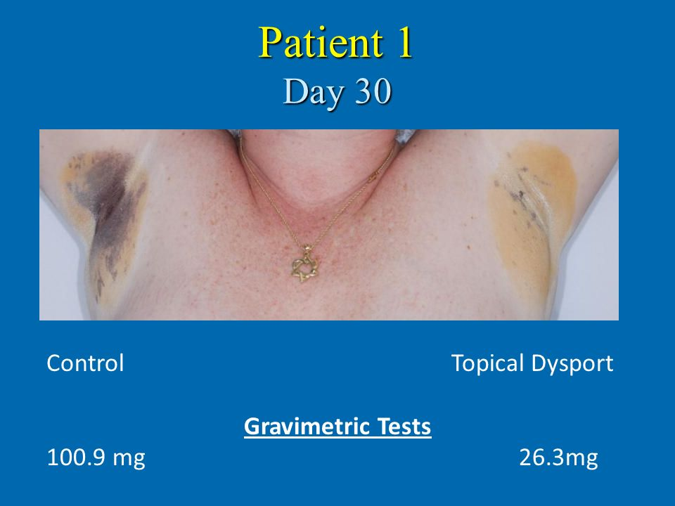 Patient 1 Day 30 Control Topical Dysport Gravimetric Tests