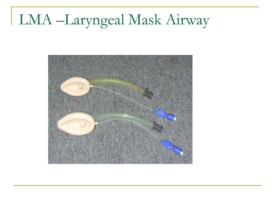 LMA –Laryngeal Mask Airway