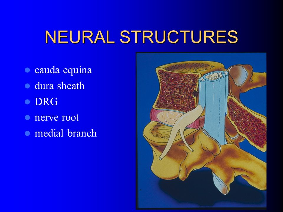NEURAL STRUCTURES cauda equina dura sheath DRG nerve root