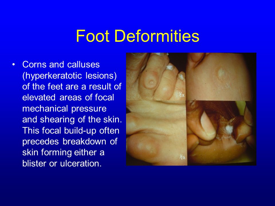 Foot Deformities