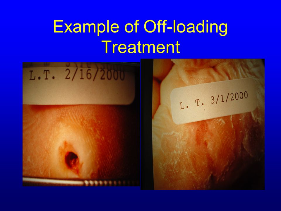 Example of Off-loading Treatment