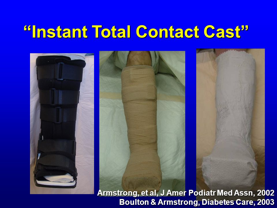 Instant Total Contact Cast