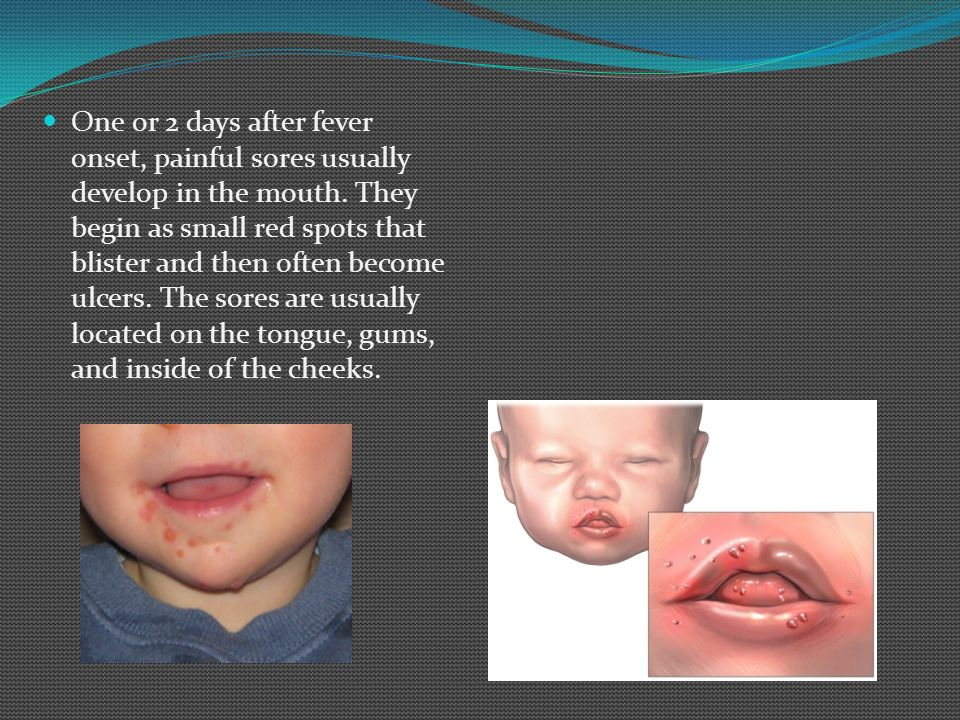 One or 2 days after fever onset, painful sores usually develop in the mouth.
