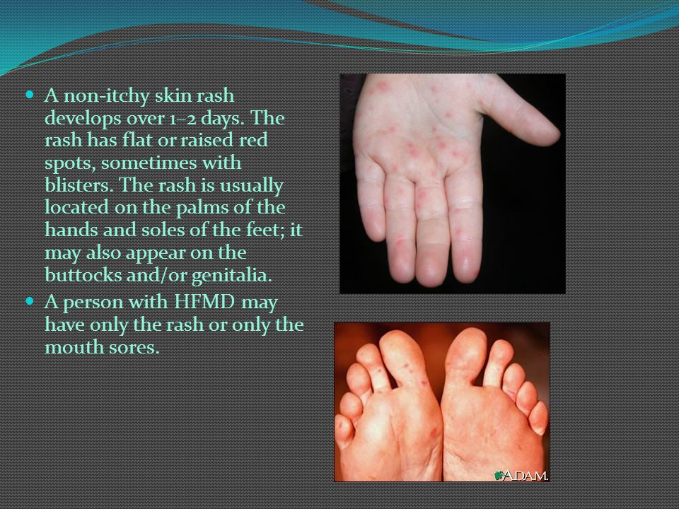 A non-itchy skin rash develops over 1–2 days