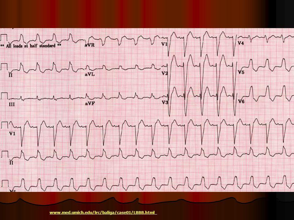 www.med.umich.edu/lrc/baliga/case01/LBBB.html
