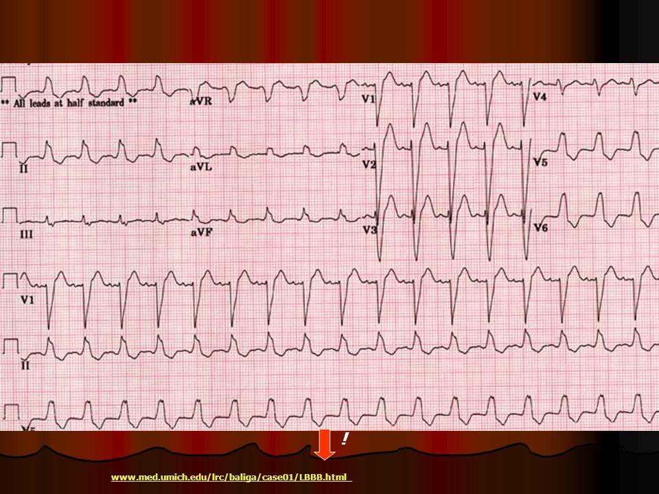 ! www.med.umich.edu/lrc/baliga/case01/LBBB.html