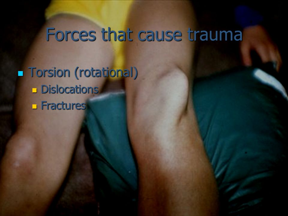 Forces that cause trauma