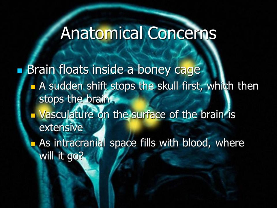 Anatomical Concerns Brain floats inside a boney cage