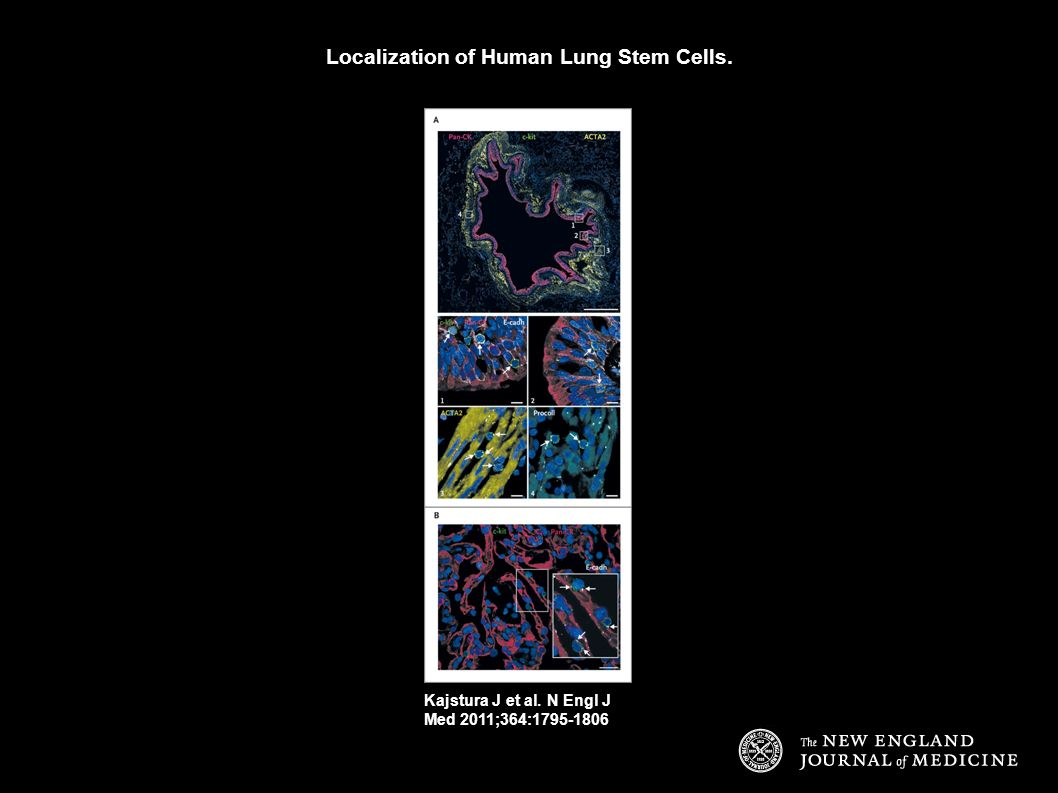 Localization of Human Lung Stem Cells.