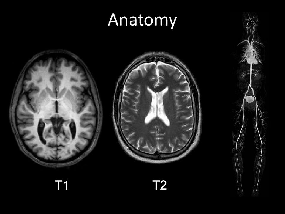 Anatomy 1T 2T