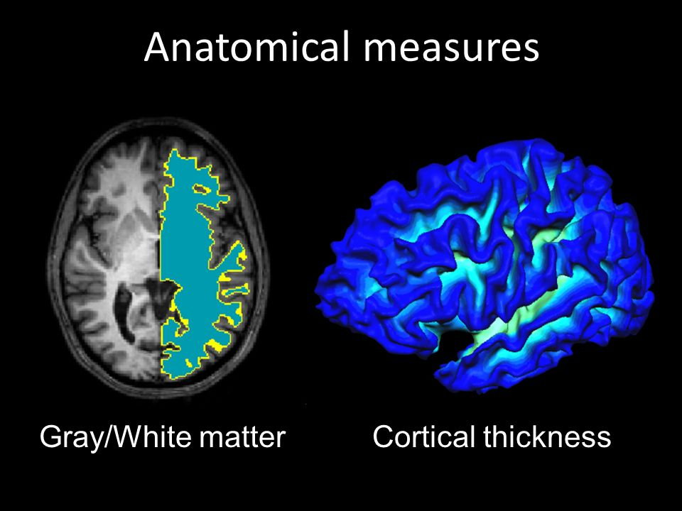 Anatomical measures Gray/White matter Cortical thickness