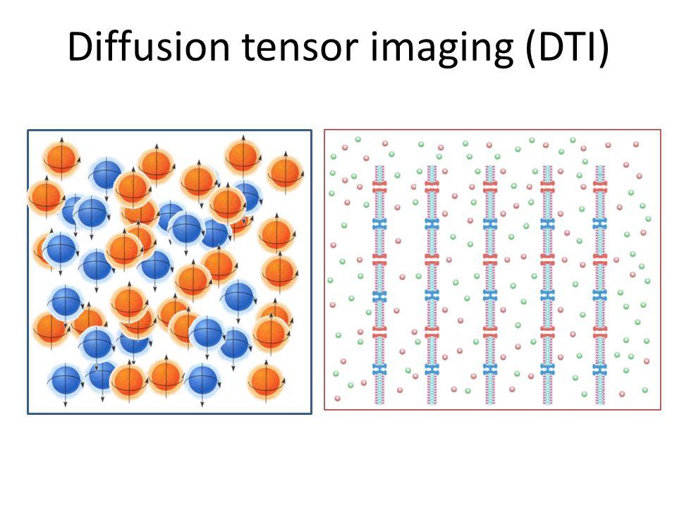 Diffusion tensor imaging (DTI)