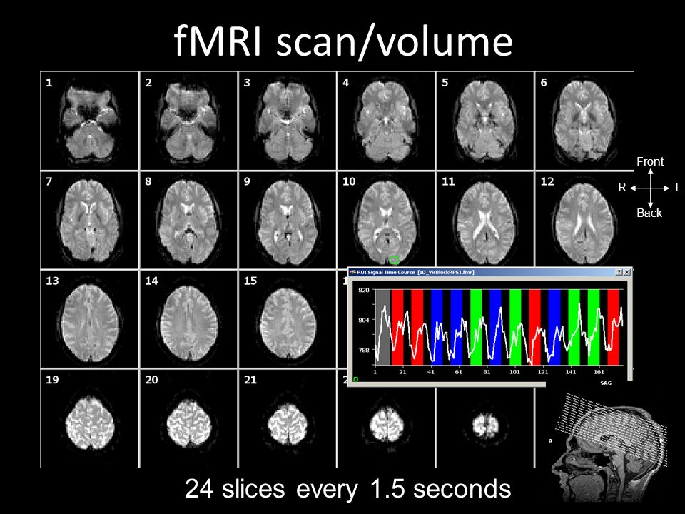 scan/volume fMRI R L Front Back 24 slices every 1.5 seconds