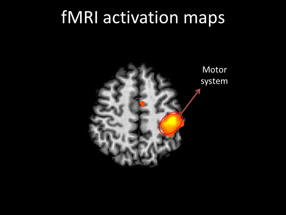 fMRI activation maps Motor system