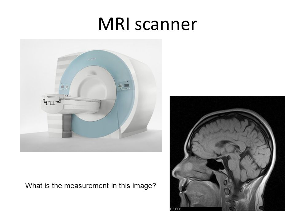 MRI scanner What is the measurement in this image