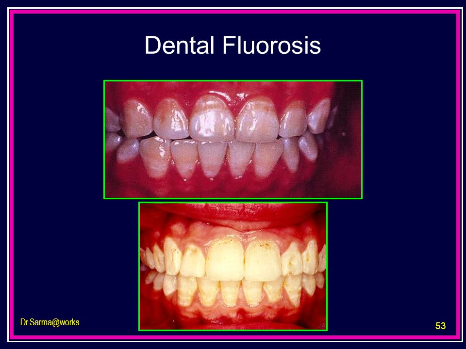 Dental Fluorosis Dr.Sarma@works