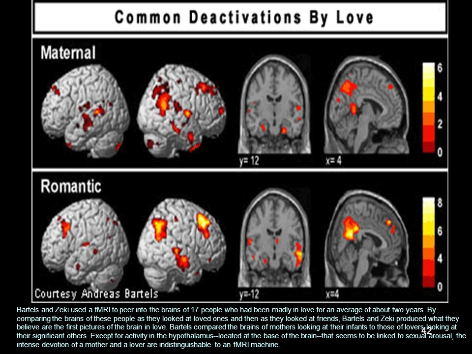 Bartels and Zeki used a fMRI to peer into the brains of 17 people who had been madly in love for an average of about two years.