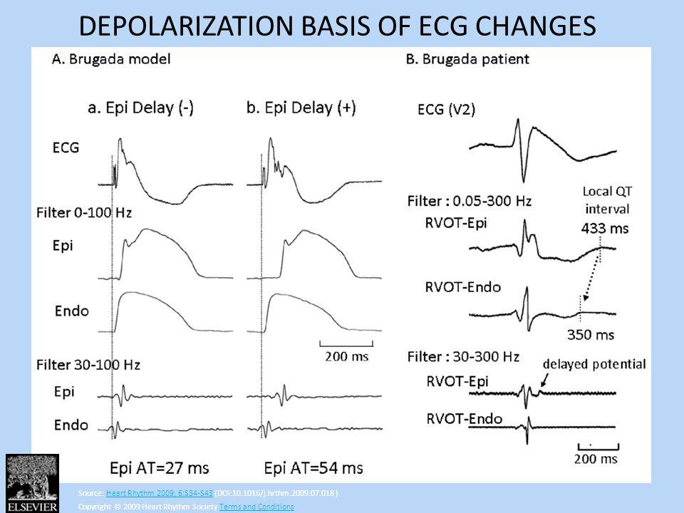 DEPOLARIZATION BASIS OF ECG CHANGES