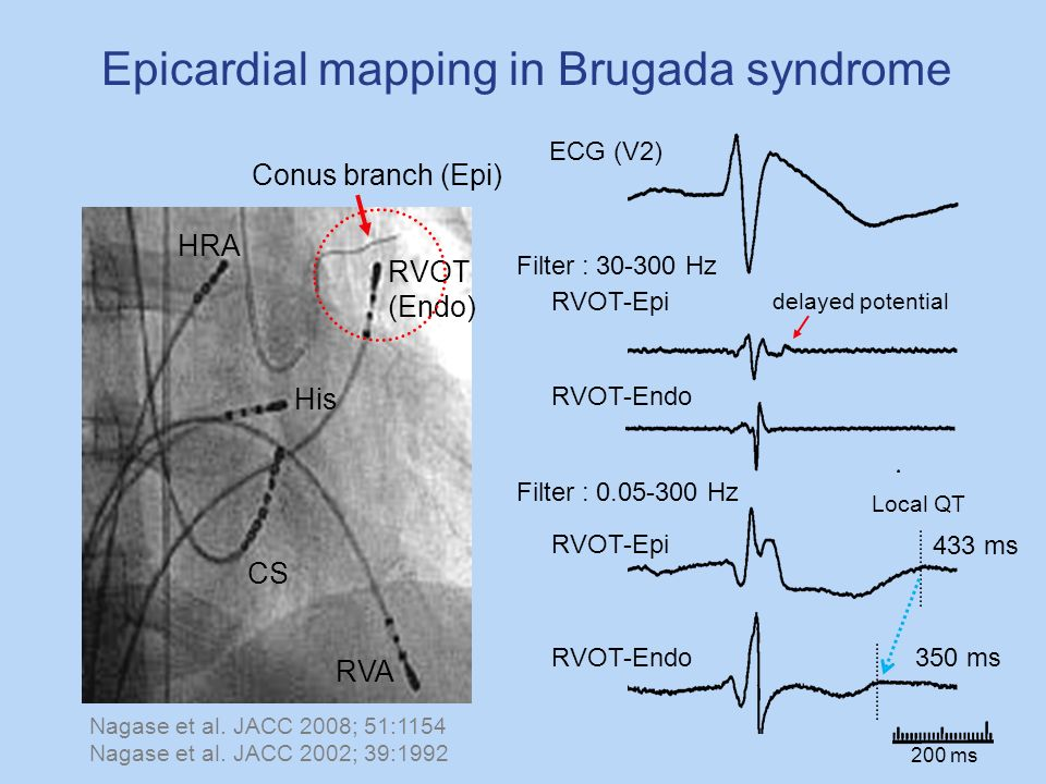 Epicardial mapping in Brugada syndrome