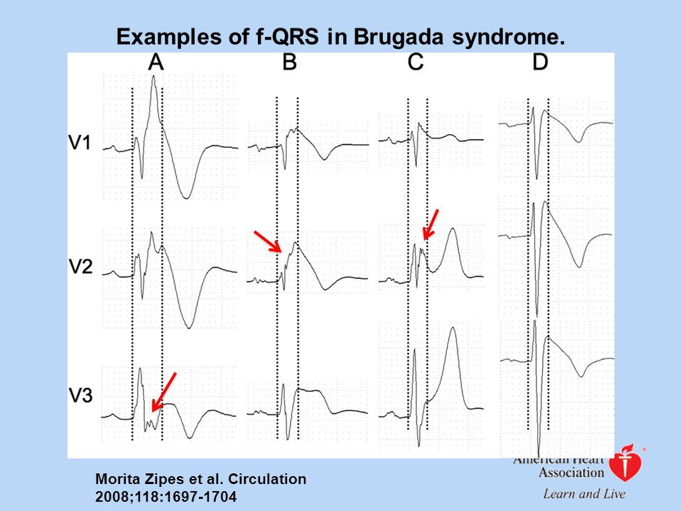 Examples of f-QRS in Brugada syndrome.