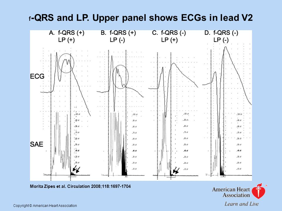 f-QRS and LP. Upper panel shows ECGs in lead V2