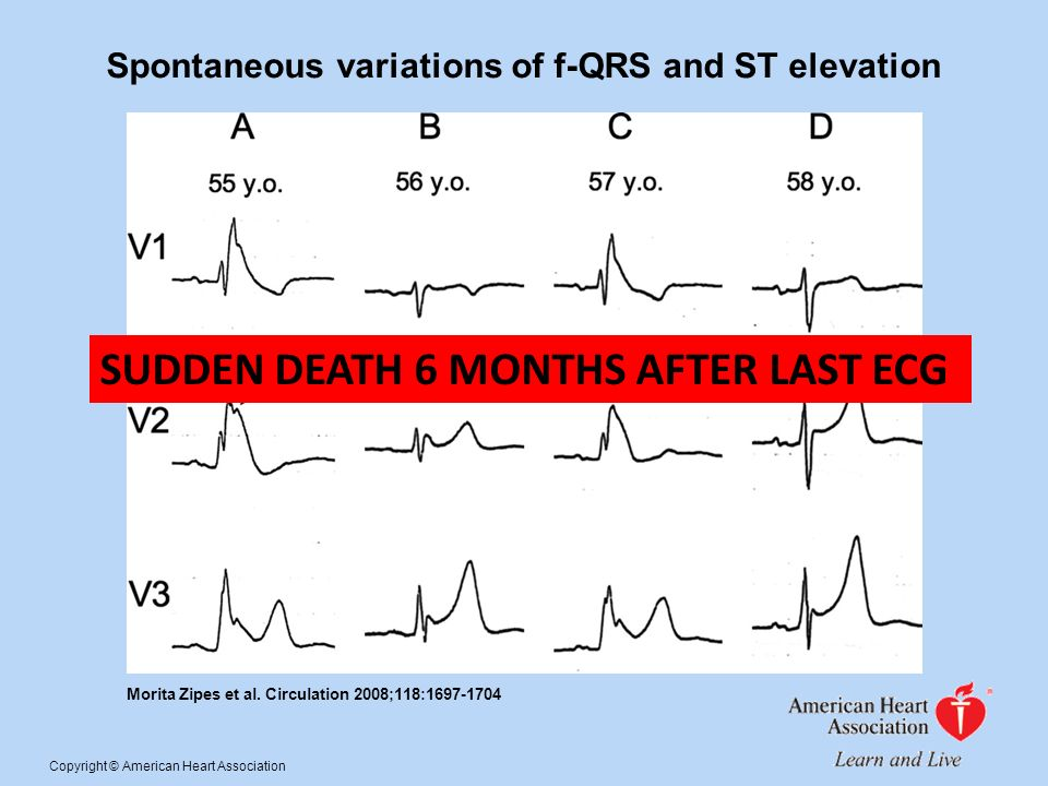 Spontaneous variations of f-QRS and ST elevation