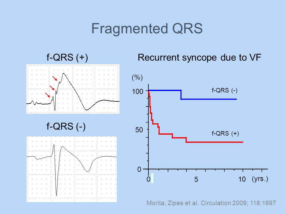 Fragmented QRS f-QRS (+) Recurrent syncope due to VF f-QRS (-) (%) 100