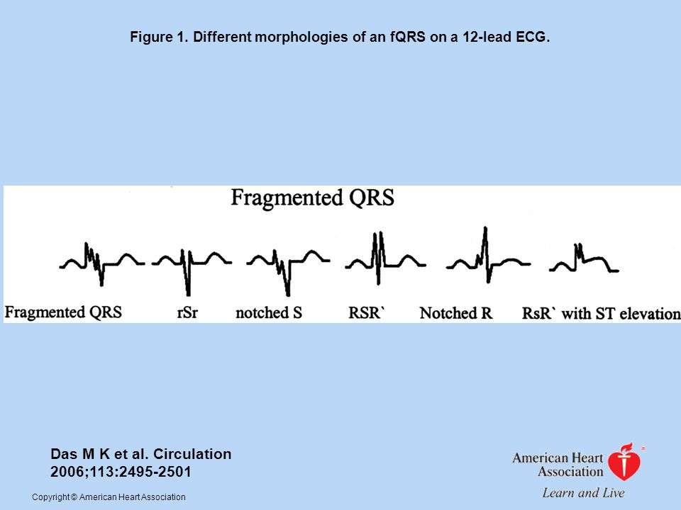 Figure 1. Different morphologies of an fQRS on a 12-lead ECG.