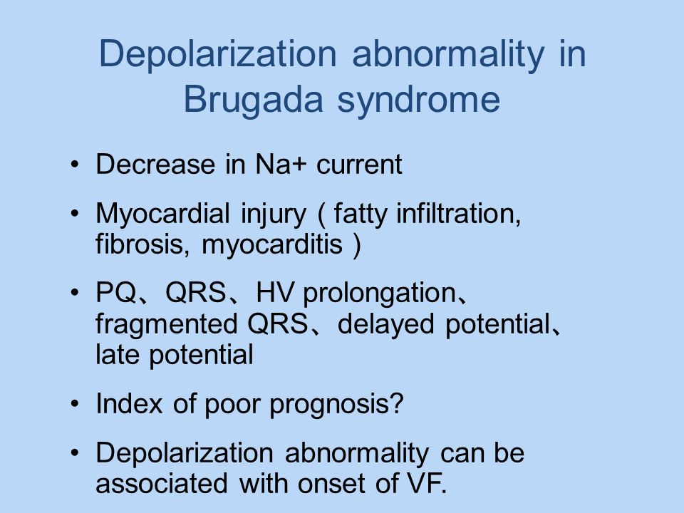 Depolarization abnormality in Brugada syndrome