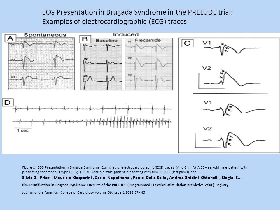 Examples of electrocardiographic (ECG) traces