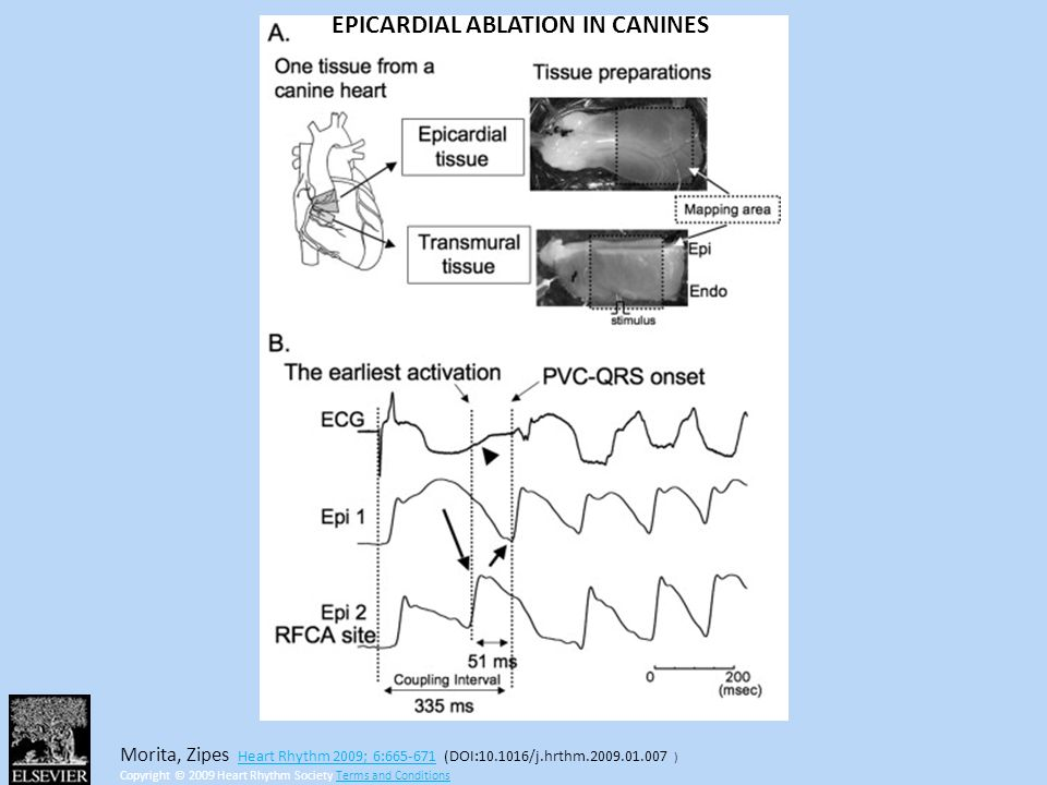 EPICARDIAL ABLATION IN CANINES