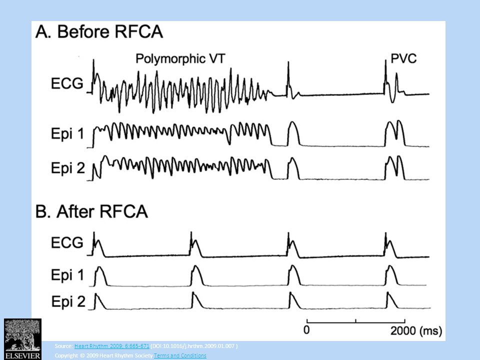 Arrhythmias before (A) and after (B) RFCA in the epicardial tissues