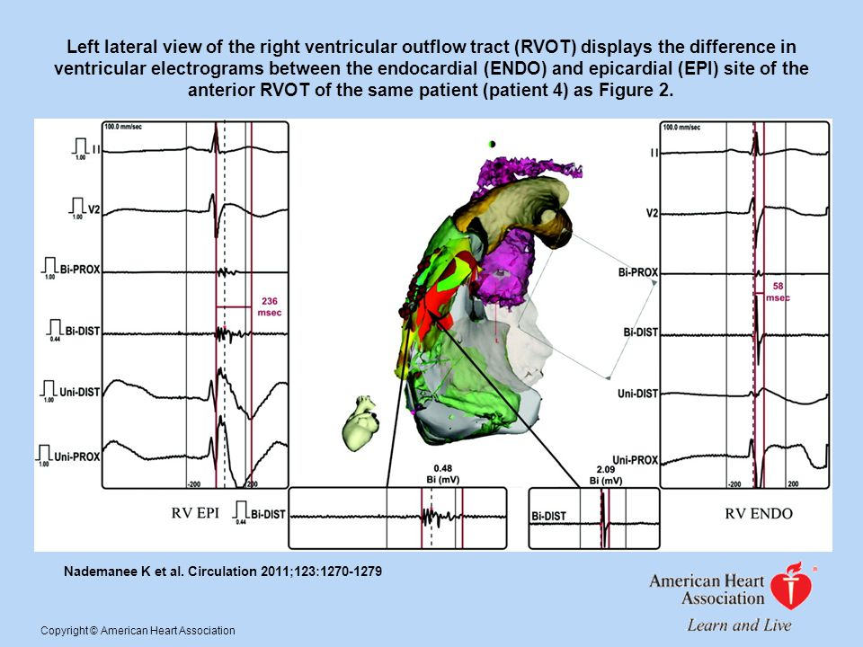 Left lateral view of the right ventricular outflow tract (RVOT) displays the difference in ventricular electrograms between the endocardial (ENDO) and epicardial (EPI) site of the anterior RVOT of the same patient (patient 4) as Figure 2.