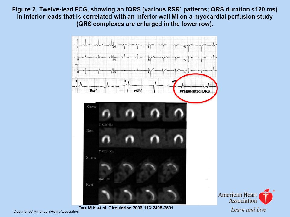 Figure 2. Twelve-lead ECG, showing an fQRS (various RSR′ patterns; QRS duration <120 ms) in inferior leads that is correlated with an inferior wall MI on a myocardial perfusion study (QRS complexes are enlarged in the lower row).
