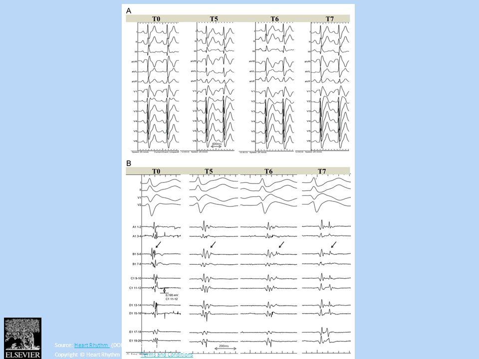 Source: Heart Rhythm (DOI:10.1016/j.hrthm.2013.05.023 )