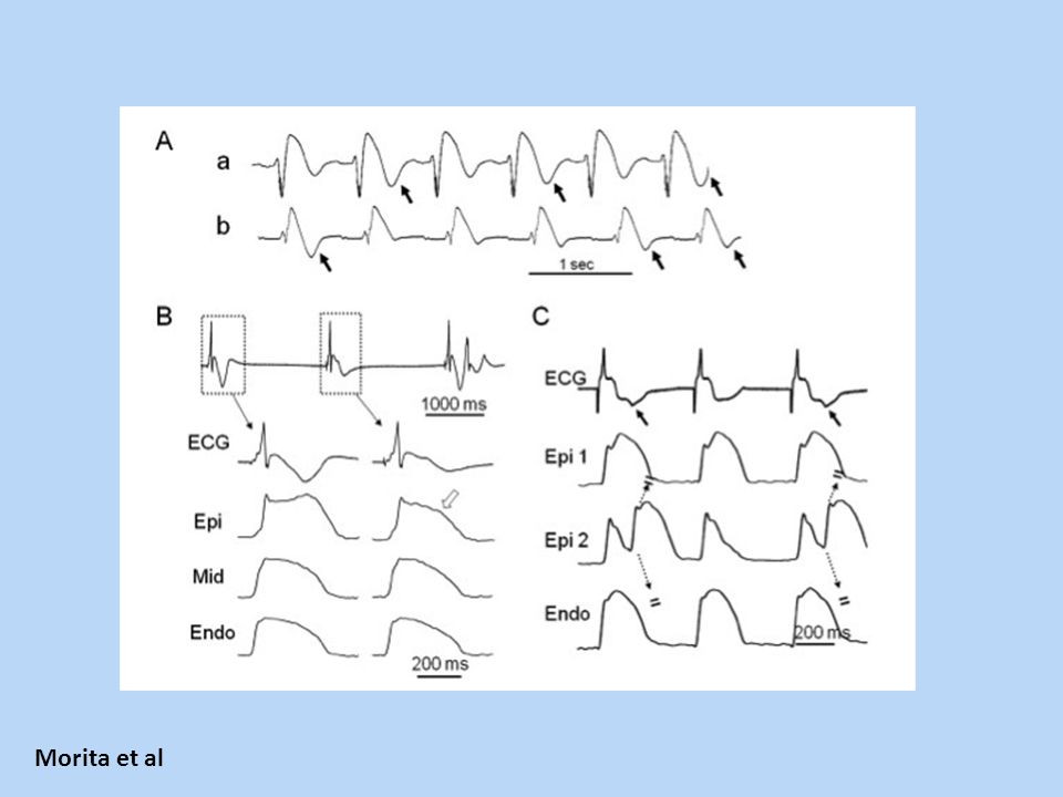 Figure 5. T wave alternans (TWA) and random T wave changes in BS. A