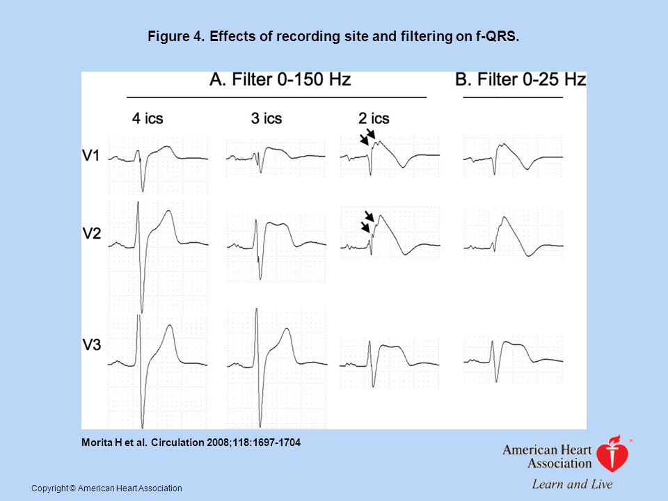 Figure 4. Effects of recording site and filtering on f-QRS.
