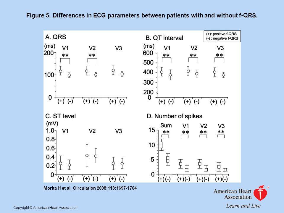 Figure 5. Differences in ECG parameters between patients with and without f-QRS.