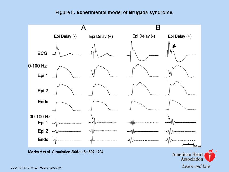 Figure 8. Experimental model of Brugada syndrome.