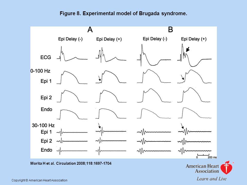 Figure 8. Experimental model of Brugada syndrome.